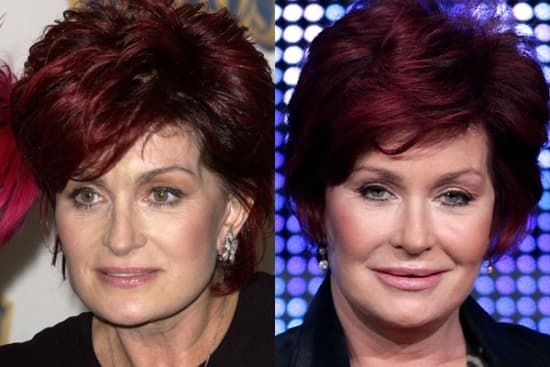 Sharon Osbourne Plastic Surgery Before And After photo - 1