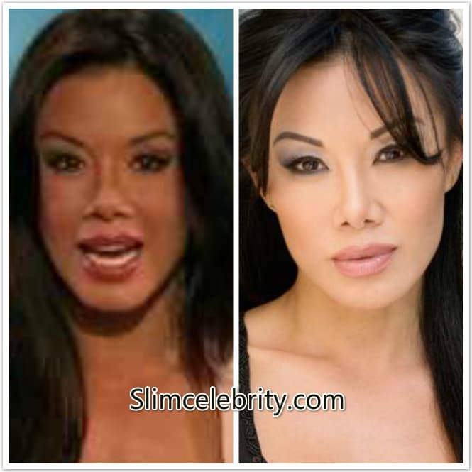 Sharon Tay Before Plastic Surgery photo - 1