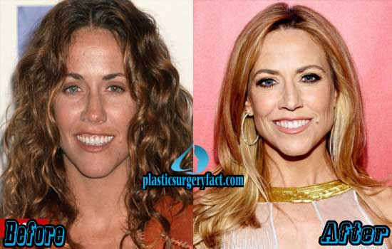 Sheryl Crow Before And After Plastic Surgery photo - 1