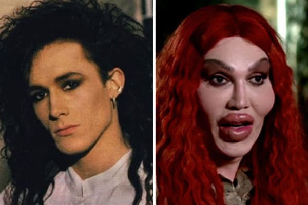 Shocking Celebrity Plastic Surgery Before And After photo - 1