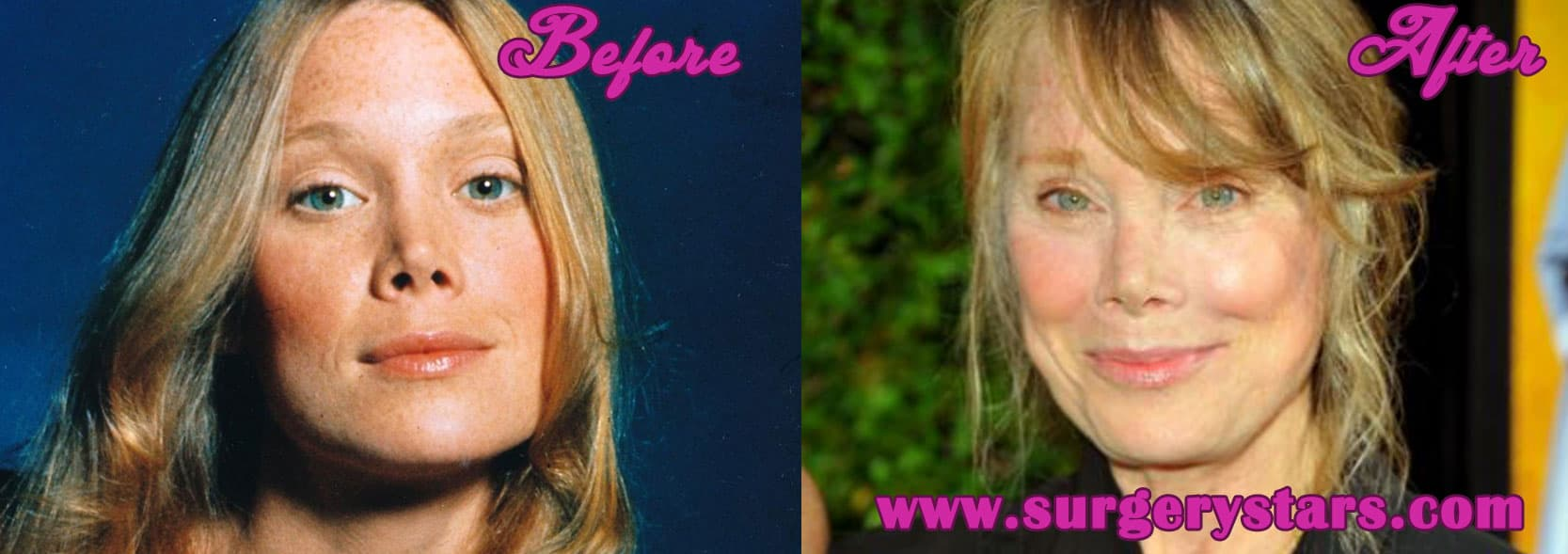 Sissy Spacek Before Plastic Surgery photo - 1