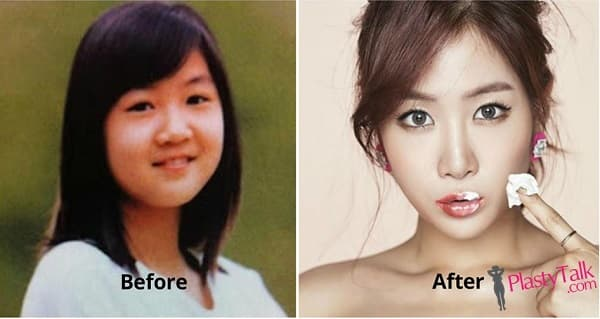 Sistar Plastic Surgery Before And After photo - 1