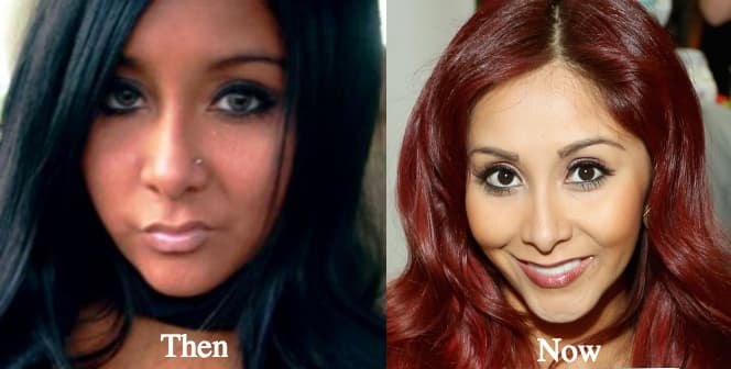 Snooki Lip Plastic Surgery Before After photo - 1