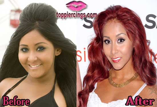 Snooki Plastic Surgery Before And After photo - 1