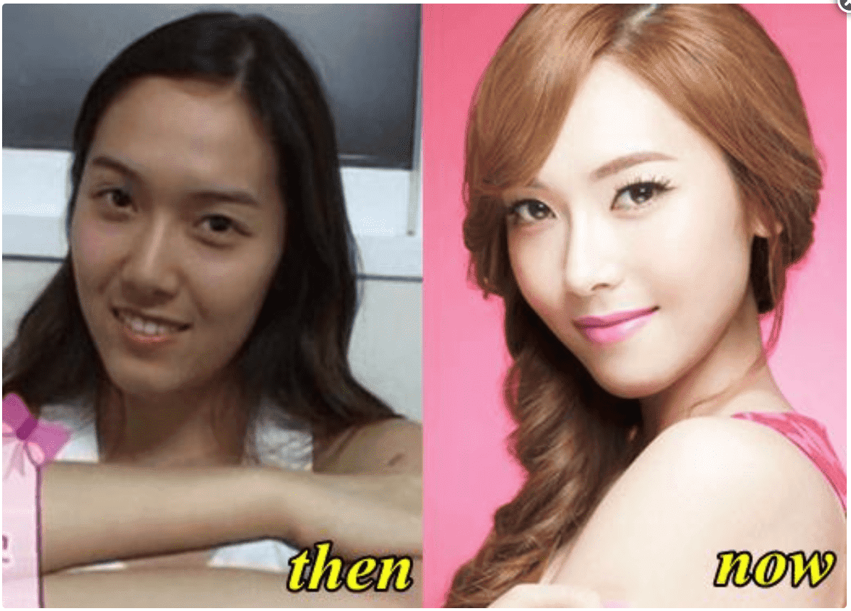 Snsd Plastic Surgery Before photo - 1