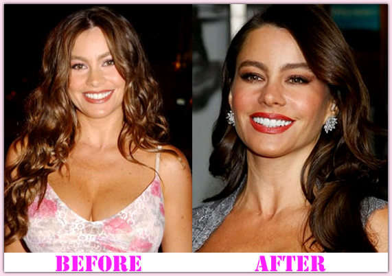 Sofia Vergara Plastic Surgery Before And After Nose photo - 1