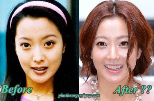 Song Ah Ri Before Plastic Surgery photo - 1
