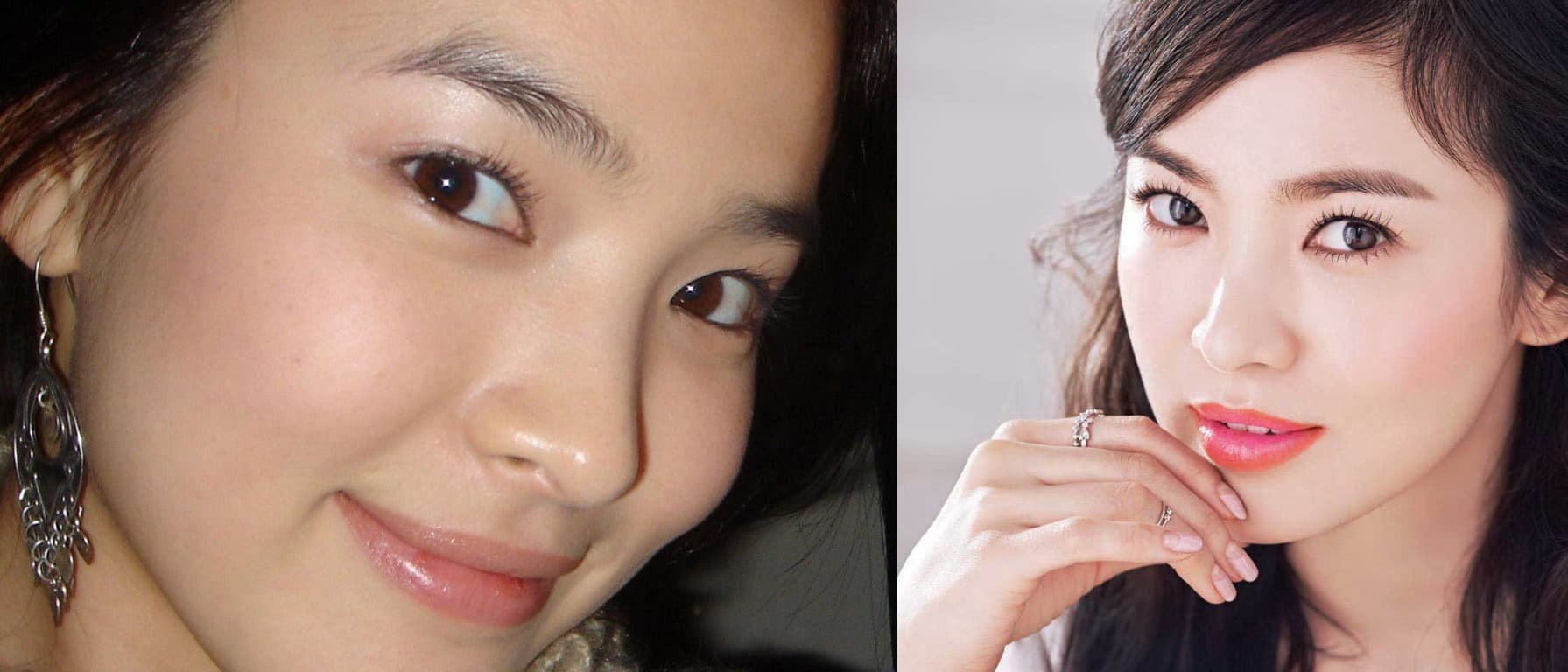 Song Hye Kyo Plastic Surgery Before photo - 1
