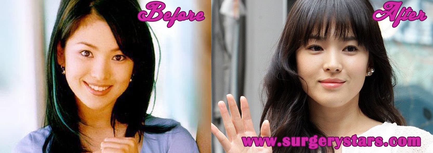 Song Hye Kyo Plastic Surgery Before And After photo - 1