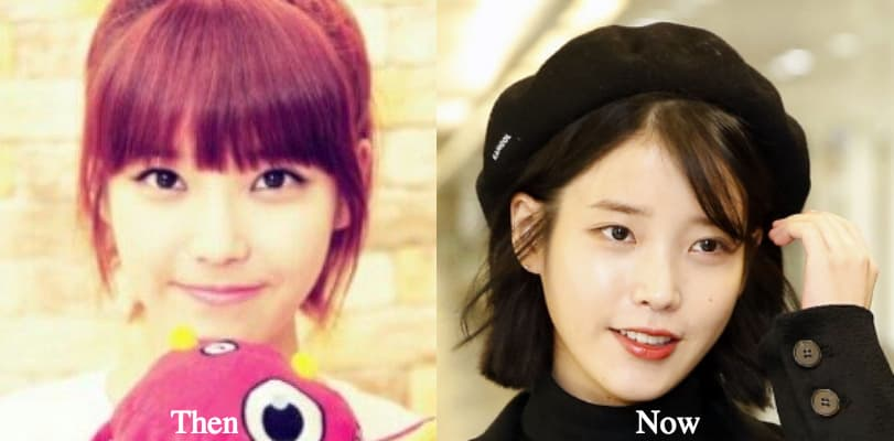 Song Ji Eun Plastic Surgery Before photo - 1