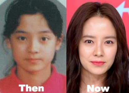 Song Ji Hyo Before Plastic Surgery photo - 1