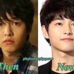 Song Seung Hyun Before Plastic Surgery photo - 1