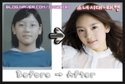 Soo Ae Before Plastic Surgery photo - 1