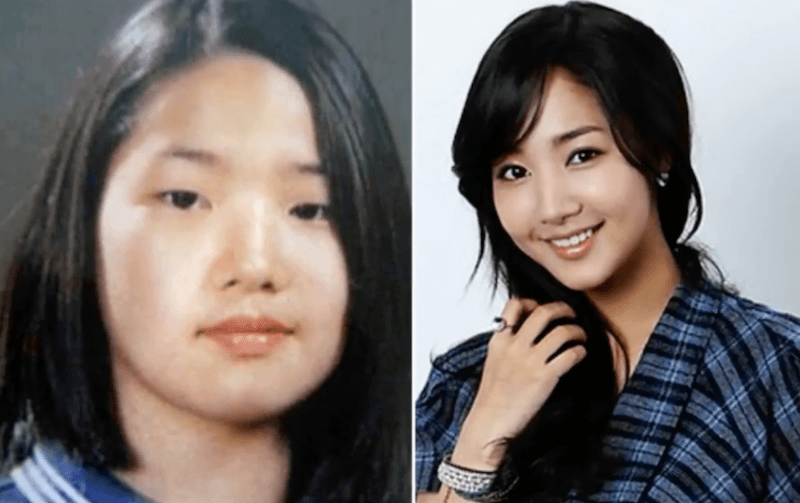 Soompi Plastic Surgery Before After photo - 1