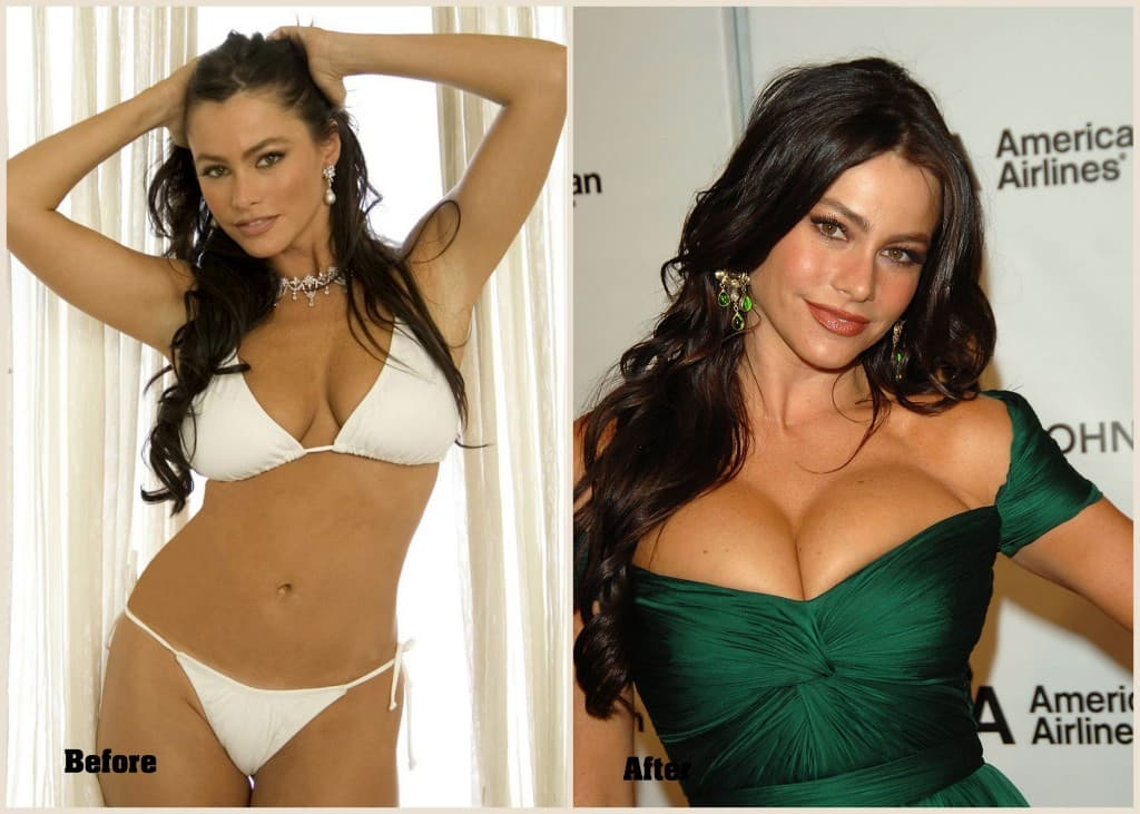 Sophia Vergara Before Plastic Surgery photo - 1