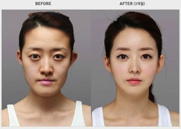 South Korea Before After Plastic Surgery photo - 1