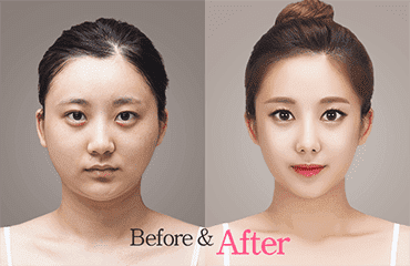 South Korea Plastic Surgery Before After Tumblr photo - 1