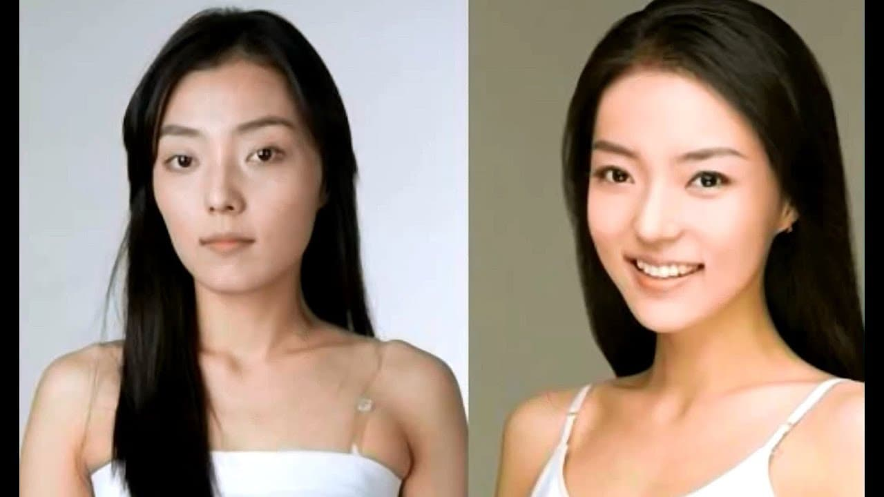 South Korean Celebrities Plastic Surgery Before And After photo - 1