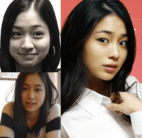 South Korean Plastic Surgery Before After Photo Journal photo - 1