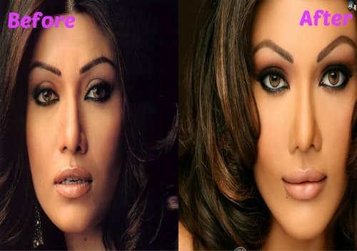 Stars Bad Plastic Surgery Before And After photo - 1