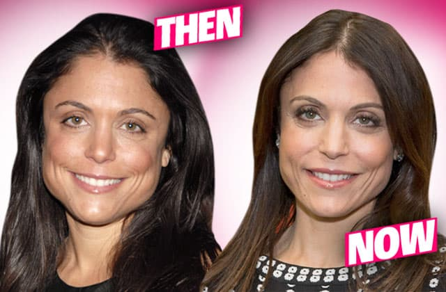 Stephanie Mcmahon Plastic Surgery Before And After photo - 1