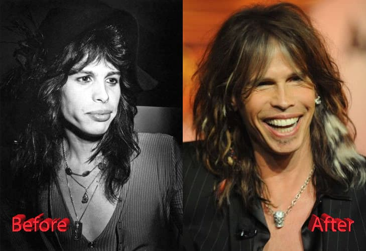 Steven Tyler Plastic Surgery Before And After Photos photo - 1