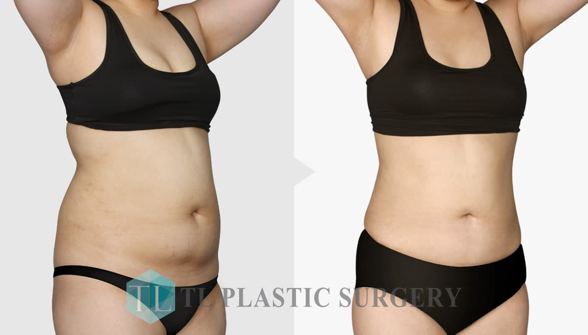 Stomach Plastic Surgery Before And After photo - 1