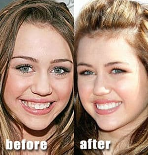 Successful Plastic Surgery Before And After photo - 1