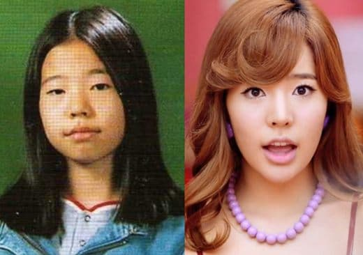 Sunny Plastic Surgery Before And After photo - 1