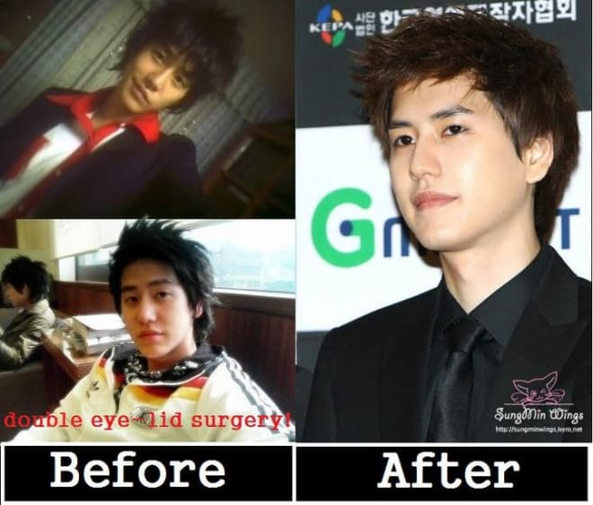 Super Junior Plastic Surgery Before And After photo - 1
