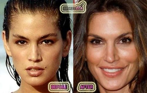 Supermodels Plastic Surgery Before And After photo - 1