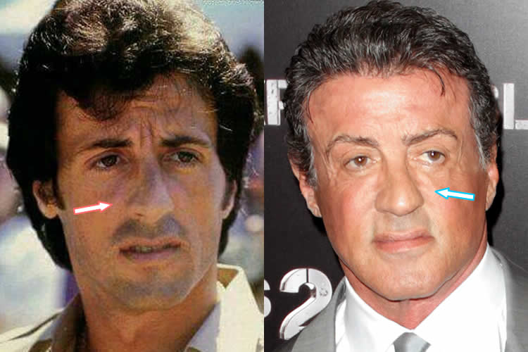 Sylvester Stallone Before And After Plastic Surgery photo - 1