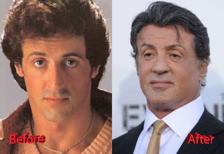 Sylvester Staloan Before Plastic Surgery photo - 1