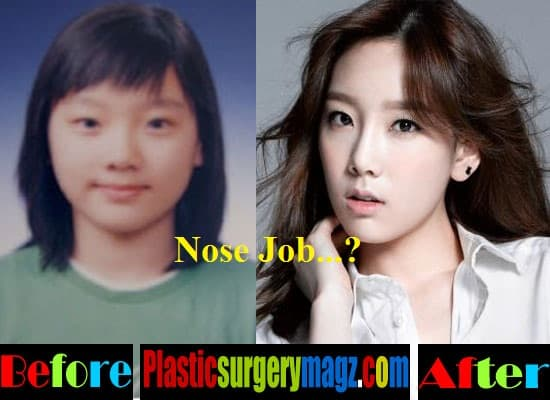 Tae Yeon Before Plastic Surgery photo - 1