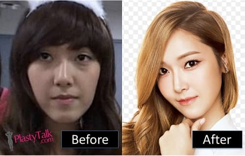 Taeyeon Plastic Surgery Before After photo - 1