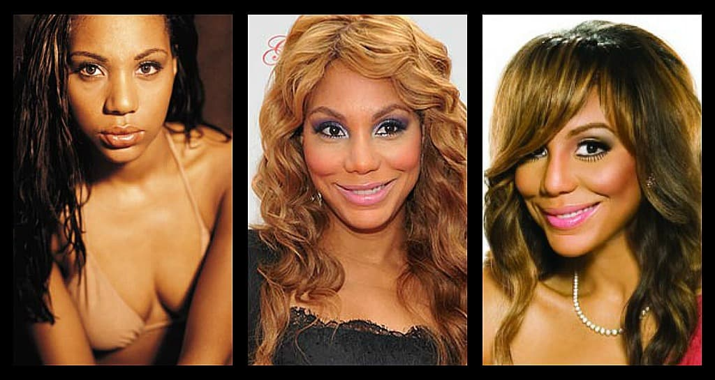 Tamar Before Plastic Surgery photo - 1