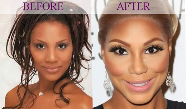 Tamar Braxton Before And After Plastic Surgery photo - 1