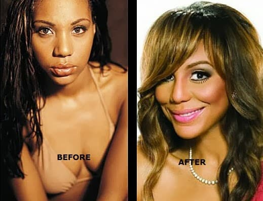 Tamar Braxton Plastic Surgery Before And After photo - 1