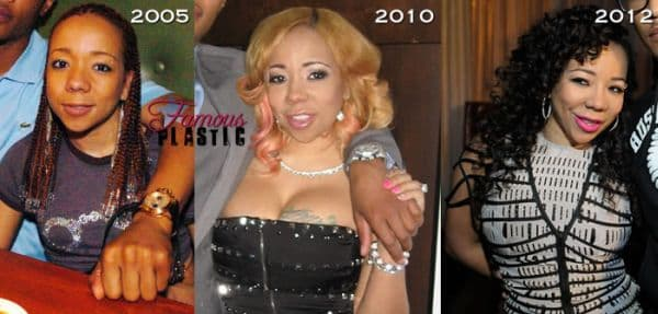 Tameka Cottle Before Plastic Surgery photo - 1
