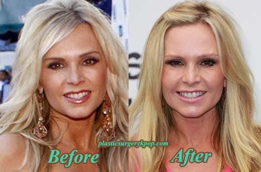 Tamra Barney Before After Plastic Surgery photo - 1