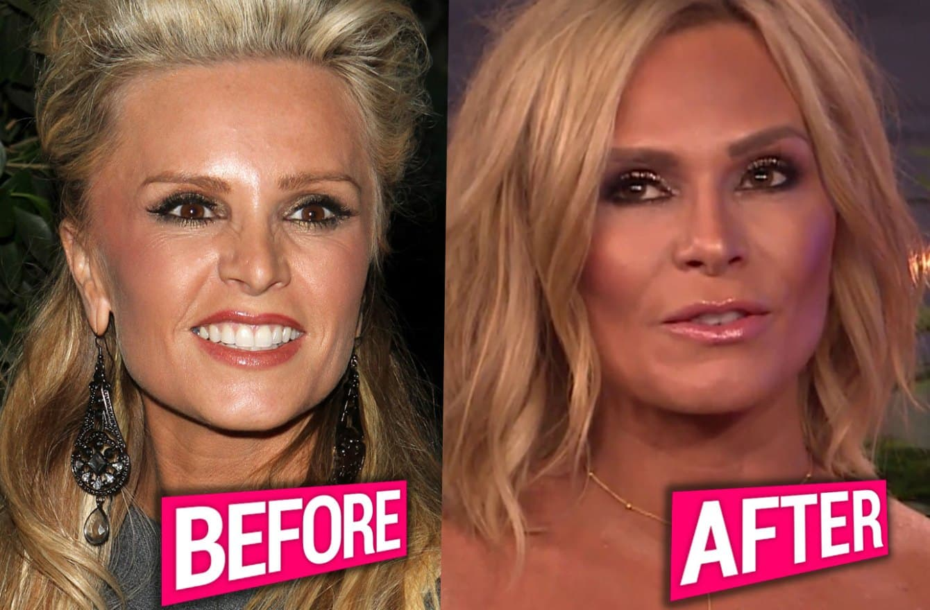 Tamra Barney Plastic Surgery Before And After photo - 1