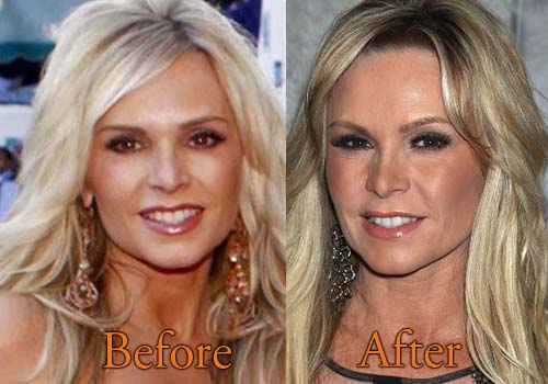 Tamra Judge Before And After Plastic Surgery photo - 1
