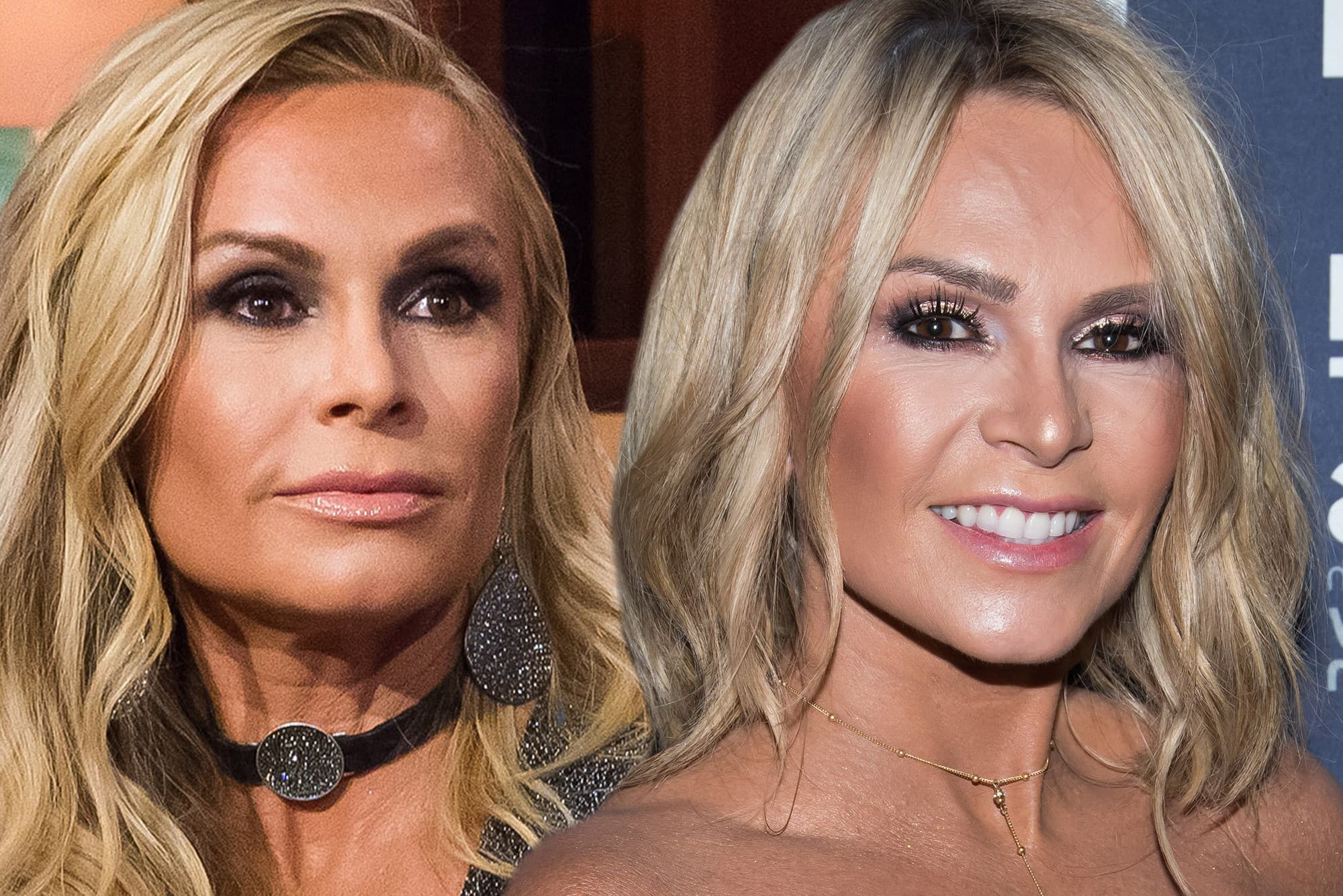 Tamra Judge Plastic Surgery Before And After photo - 1