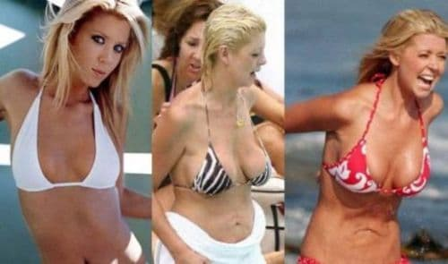 Tara Reid Before And After Plastic Surgery Images photo - 1