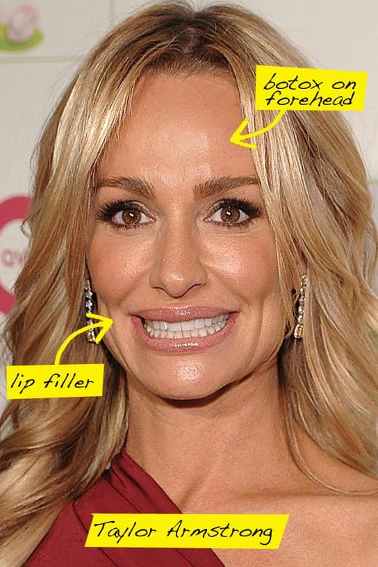 Taylor Housewives Of Beverly Hills Before Plastic Surgery photo - 1
