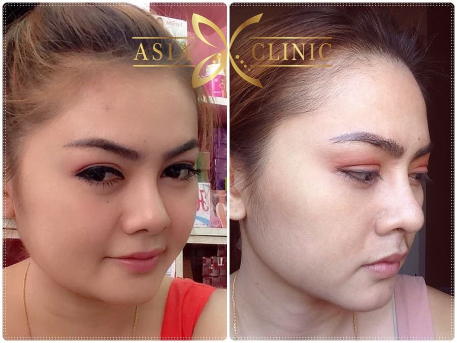 Thai Plastic Surgery Before And After photo - 1