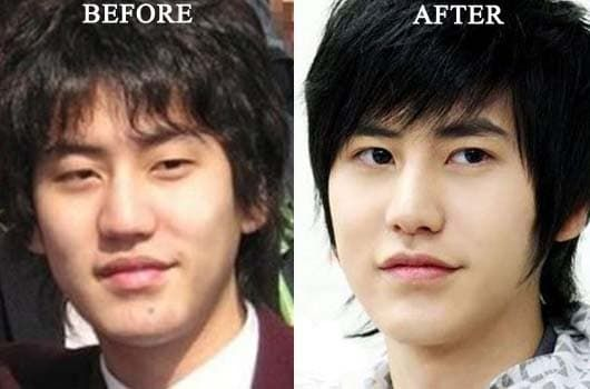 Thai Plastic Surgery Before And After Double Eyelid photo - 1