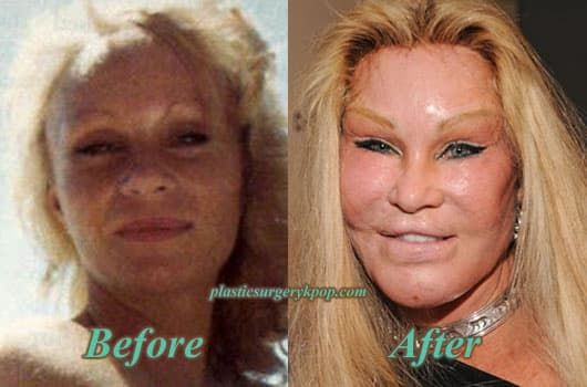 The Catwoman Plastic Surgery Before And After photo - 1