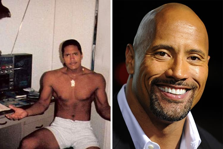 The Rock Plastic Surgery Before And After photo - 1