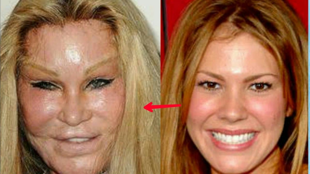 The Worst Before And After Plastic Surgery photo - 1